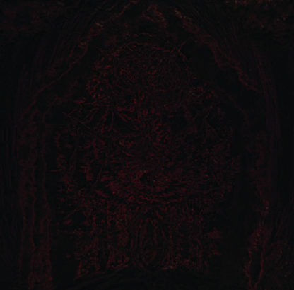 IMPETUOUS RITUAL Blight Upon Martyred Sentience - Vinyl LP (black)